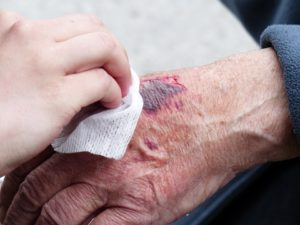 Wound Care Clinic